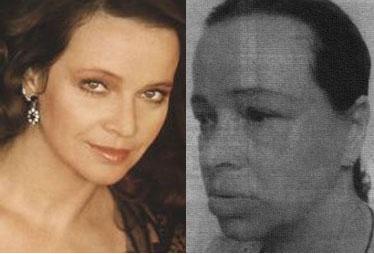 Laura Antonelli prima e dopo il lifting
