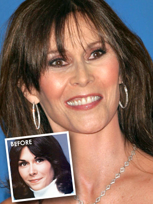 Charlie's Angels: Kate Jackson, un angelo in rovina