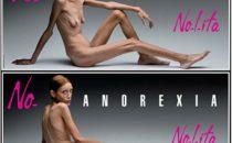 Nolita, morta la modella anoressica Isabelle Caro