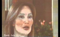 Plastik Ultrabellezza, al via su Italia1 il docu-reality con Elena Santarelli