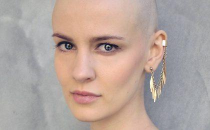 Morta Veronica Sogni, finalista di Miss Italia nel 2009: la malattia l'aveva colpita nel 2012